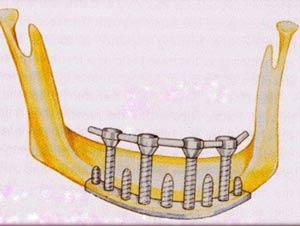 ایمپلنت دندان: جایگزین کردن دندانهای طبیعی با کاشت دندان