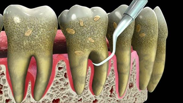 جرم گیری دندان:صیقل و پولش دادن دندان با تصحیح سطح ریشه و بروساژ