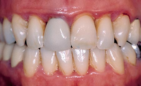 درمان پلاک و جرم دندان:تخریب مینا دندان با باکتریهای بیماریزا