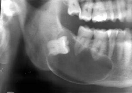 درمان کیست دندان و لثه:خارج کردن عفونت با روش غیرتهاجمی و جراحی