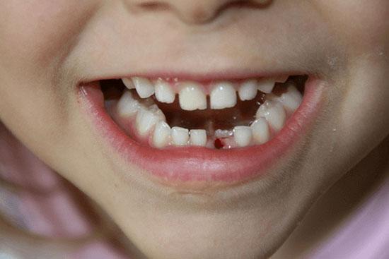 کشیدن و ترمیم بدون درد دندان شیری و دائمی لق و پوسیده در کودکان