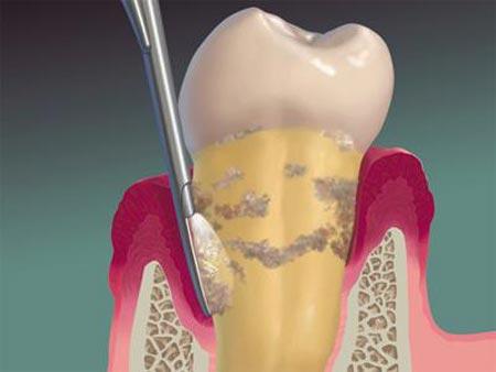 لق شدن دندان دائمی در اثر آسیب استخوان و رباط نگه دارنده دندان لق