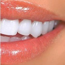 لمینت دندان لبخند درجه 1 و درخشان