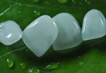 هزینه لمینت دندان (سرامیکی و کامپوزیتی) و عوامل تاثیر گذار بر قیمت ونیر