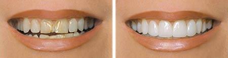 حفظ ساختار دندان