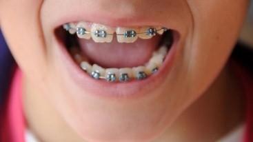 ارتودنسی پیشگیری یا زودهنگام بهترین راه برای رفع نامرتبی دندان کودکان