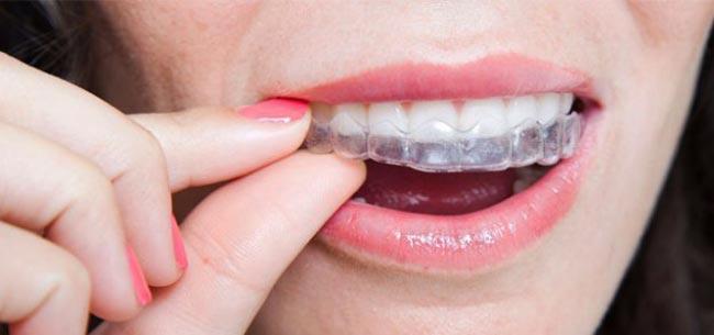 نایت گارد (محافظ دهانی،محافظ دندانی):کاهش فشار به دندان و فک