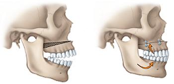 اپن بایت (فاصله بین دندان بالا و پایین):درمان مشکلات گفتار و زیبایی