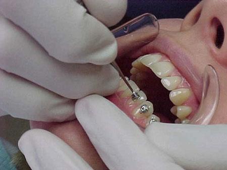 ارتودنسی با براکت یا بریس فلزی بهترین روش در مرتب کردن دندانها