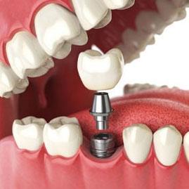 علت های شکست و پس زدن ایمپلنت دندان و راه های درمان ایمپلنتهای ناموفق