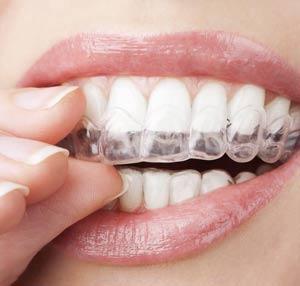 روشهای سفید کردن دندان در خانه