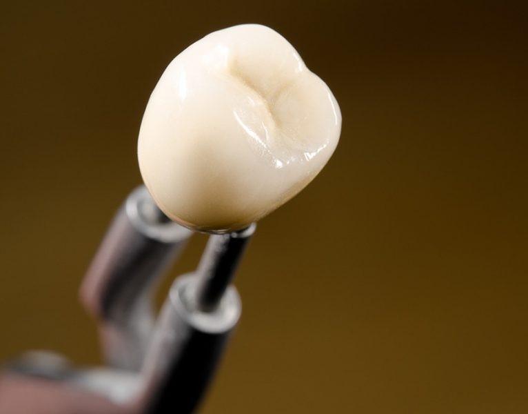 لکه سیاه، زرد و قهوه ای دندان:لبخند جذاب با درمان تغییر رنگ دندان