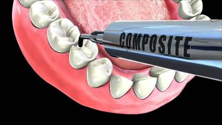پر کردن دندان بهترین روش ترمیم بخش آسیب دیده دندان