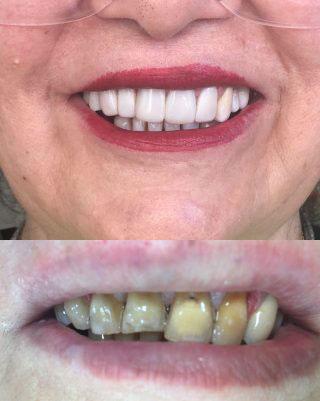 لومینرز : روکش زیبایی نازک بدون تراش دندان