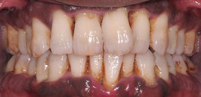 رابطه بیماریهای شایع دهان، دندان و لثه کودکان و بزرگسالان و بهداشت دهان