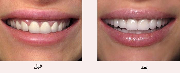 پرسلاین ونیر دندان با چه رنگ و شکلی برای من مناسب است؟
