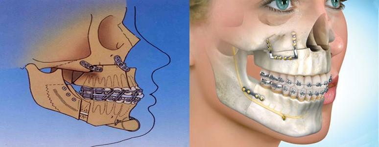 جراحی فک (جراحی ارتوگناتیک،جراحی ارتودنسی) برای اصلاح موقعیت فکین
