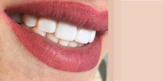 عمل زیبایی دندان