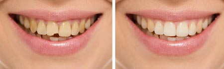 درمان ترک و شکستگی دندان:جلوگیری از تجمع باکتری در دندان شکسته