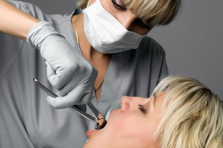 کشیدن دندان (extract) و جراحی: مراقبت بعد، برای جلوگیری از خونریزی